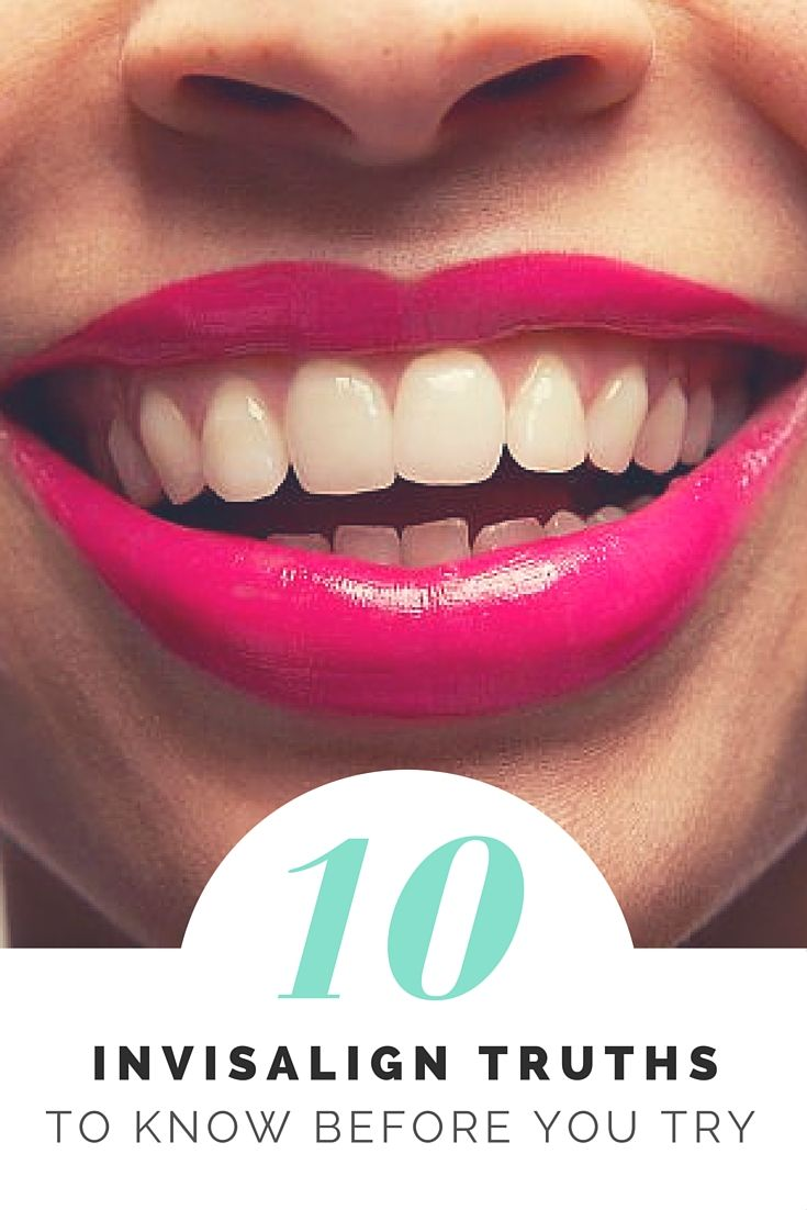 """Despite wearing her retainer every night since she got her braces off, Kelsey Castanon, a Beauty Editor at Shape Magazine, said her teeth still shifted. She recently got her straight smile back thanks to Invisalign clear aligners, and although she says it was """"100 percent worth it"""" she wants to set the record straight about what it's really like to go through Invisalign treatment."""