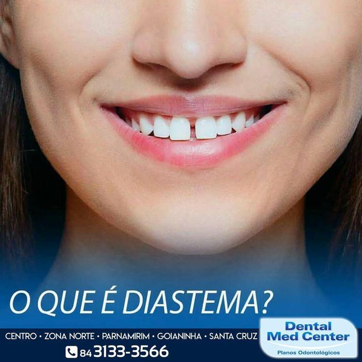 Diastema é o espaço entre os dentes costuma ser presente nos incisivos centrais e é considerado por muitos como um incômodo.  Portanto se você possui ou conhece alguém que gostaria de dar um jeito entre em contato ou compareça à Dental Med Center mais próxima de você aqui temos a melhor solução para você.  Mais informações  Matriz - (84) 3133-3566 Zona Norte - (84) 3661-3376 Parnamirim - (84) 3272-3938 Goianinha - (84) 3243-3033 Santa Cruz - (84) 3291-4608  #dentes #saudebucal #cuidados…