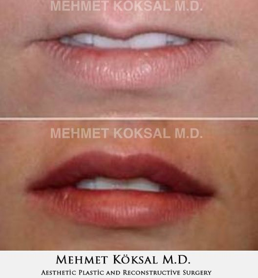 Looking for beautiful lips and don't know which procedure is best for you? Here are information about Lip Fillers and Permanent Lip Implants: http://drmehmetkoksal.com/lip-augmentation #lipaugmentation #beautifullips #lipfillers #permalip #juvaderm #restylane #sexylips #aestheticsurgery #aestheticlips #plasticsurgery