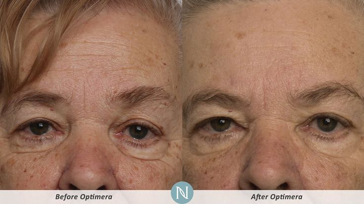 www.realvisibleresults.theneriumlook.com #Canada #cellulite #looseskin #antiaging # fountainofyouth # workfromhome #makemoneyonline # REAL