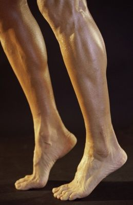 Varicose vein removal procedures for men and women are minimally invasive and covered by most insurance