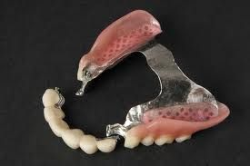 Tipos de prótesis dentales | Denturalia