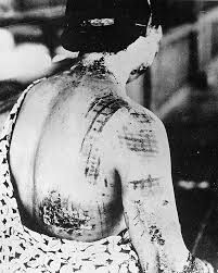 This image is showing the damage done from after the bombing of Hiroshima and Nagasaki due to the radiation it caused after the bombs. This affected a mass number of people because not only did it kill thousands instantly who were close enough but also thousands of words from the amount of radiation.