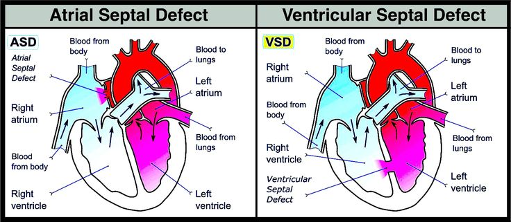 Atrial Septal Defect  vs Ventricular Septal Defect: Both increase pulmonary flow.  Look for lung involvement/CHF/increased RR/tachycardia