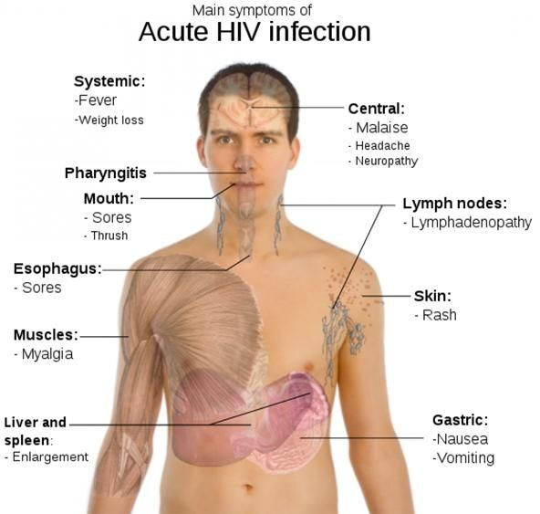 HIV AIDS Symptoms