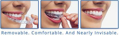 Straight teeth help an individual more effectively bite, chew & even speak. Get different types of #Braces for your beautiful smile. We offers various types of braces for all age groups. Visit http://www.eastgateorthodontics.com/types-of-braces
