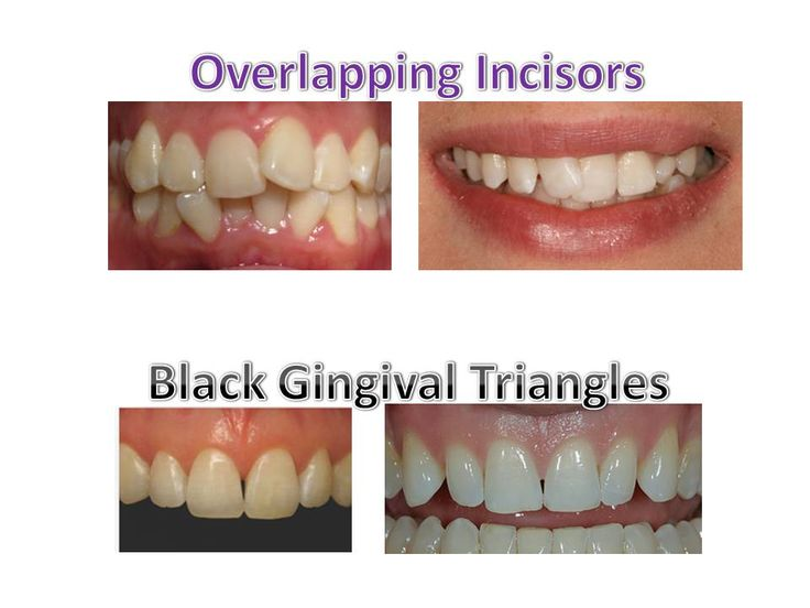 Early correction of overlapping incisors is important to minimize the chances of developing black gingival triangles after teeth are straighten, due to the gum being squeezed for many years.