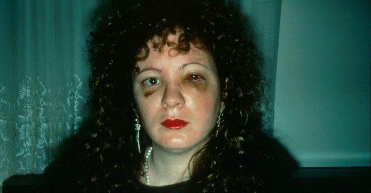 Nan, self-portrait, after being beaten up.