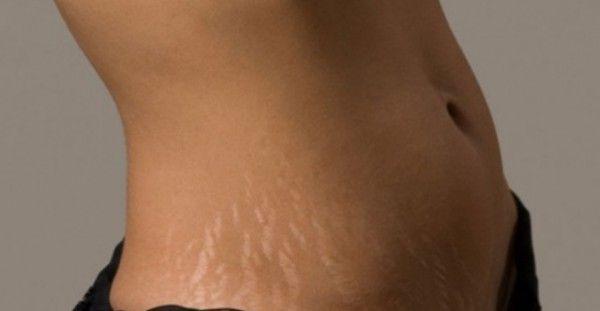 Υγεία - Νιώθετε ανασφάλεια και αμηχανία λόγω της εμφάνισης των ραγάδων στο σώμα σας; Δεν είστε μόνες! Αυτές οι χρωματιστές γραμμές στην επιφάνεια του δέρματος είνα