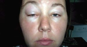 No Lame Excuse: British Woman Diagnosed with Exercise Allergy