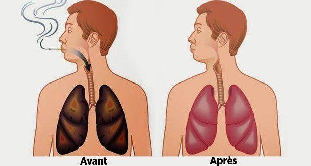 C'est bien connu, le tabagisme affecte la santé physique et mentale. Il est donc conseillé d'arrêter de fumer le plus tôt possible pour éviter de causer plus de dommages. Selon l'OMS, le tabac est responsable de la mort d'un adulte sur 10, ce qui causerait environ 8 millions de morts par an d'ici 2030.Les produits... Lire l'article