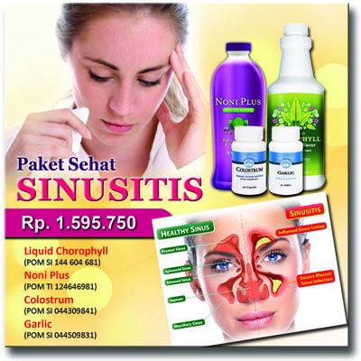 www.detoxgaleri.com/dudik - Paket Sehat Sinusitis