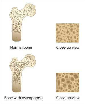 What is Osteoporosis, Treatments for Osteoporosis, Osteoporosis Causes, Osteoporosis Natural Treatment, Osteoporosis Symptoms   Positive Healthcare