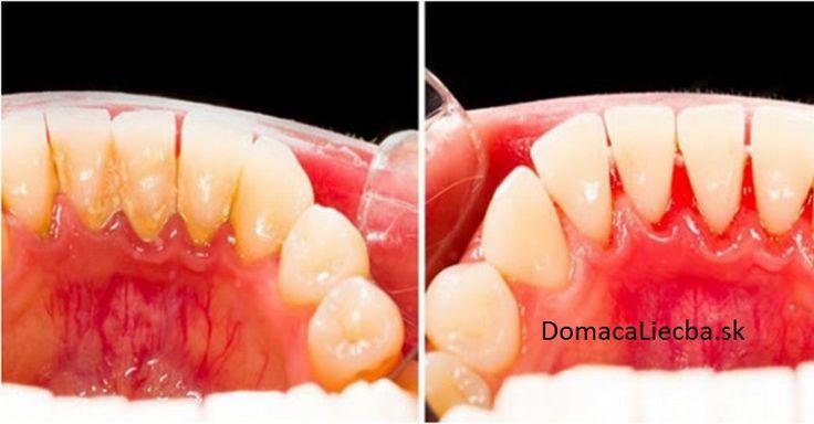 Odstráňte si zubný kameň aj sami doma: Tu sú 4 jednoduché spôsoby