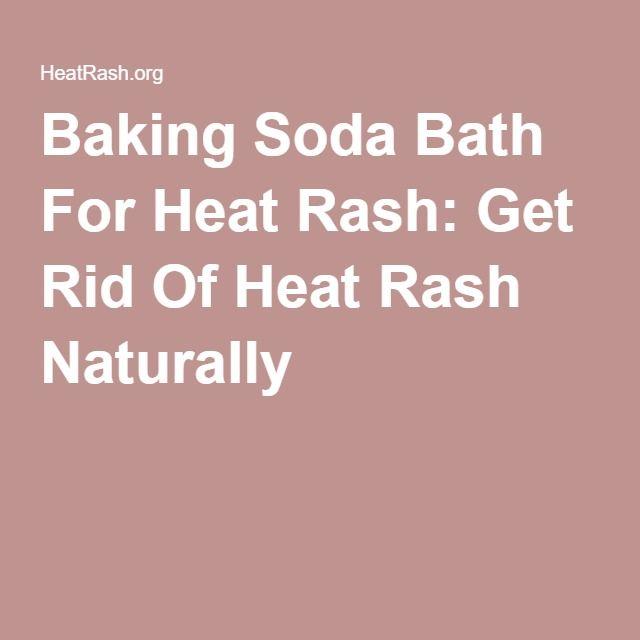 Baking Soda Bath For Heat Rash: Get Rid Of Heat Rash Naturally