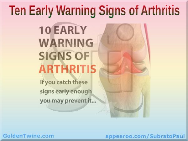 In case you didn't know, arthritis is the number one reason Americans go to the doctor, and we pay dearly for it. Don't wait around for Arthritis to claim you as its next victim!  Check it out on GoldenTwine Blog:  Ten Early Warning Signs of Arthritis | If you catch these signs early enough, you may prevent it.  http://www.goldentwine.com/blog/ten-early-warning-signs-of-arthritis    Comments on blog post would be highly appreciated and reciprocated. Thanks!
