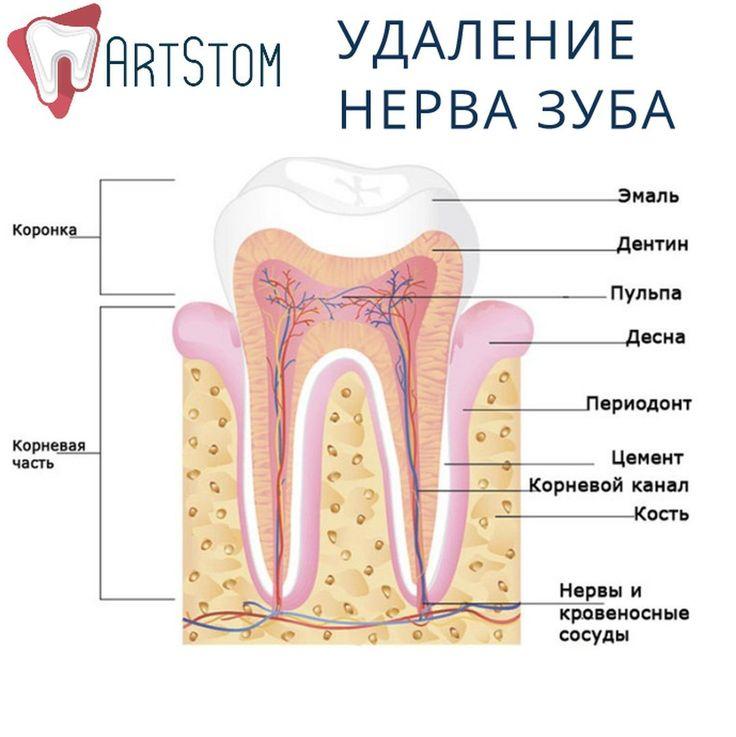 Наверное, многим из нас знакома процедура удаления нерва зуба.   Первые ассоциации – мышьяк и невыносимая боль в течение нескольких дней. Эти воспоминания вызывают ужас, и многие боятся повторения этого кошмара. Но стоит ли бояться? Или же что-то изменилось, и мышьяк ушел в прошлое? Раньше процедура удаления нерва зуба была долгой, болезненной и требующей нескольких посещений врача. Выглядело это примерно так:  Сначала при помощи бормашины расширялся корневой канал, чтобы обнажить пульпу и…