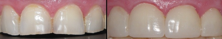 Dr. Michael Mora restored these front teeth with veneers.  A veneer is a thin layer of restorative material placed over a tooth surface, either to improve the aesthetics of a tooth, or to protect a damaged tooth surface.