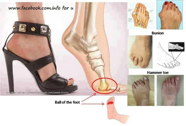 Prolonged wearing of high heels can cause a permanent damages