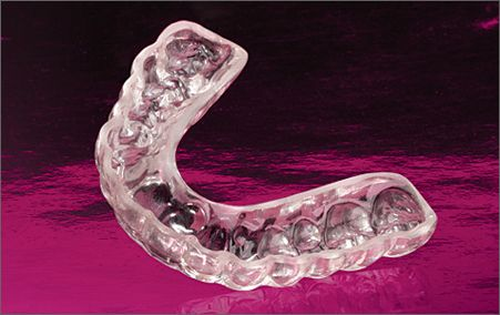 What's the Easiest Way to Clean My Retainer or Nightguard?