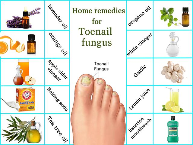 How To Get Rid Of Toe Nail Fungus Best Home Remedies For