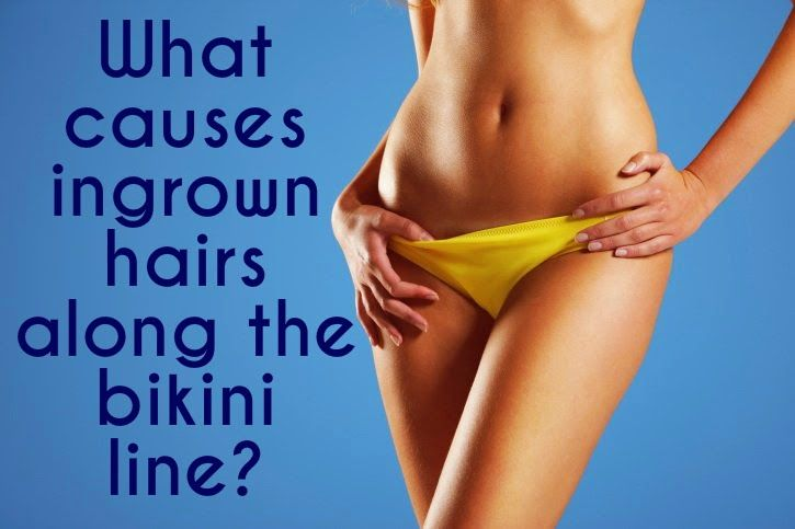 """""""What Causes Ingrown Hairs?"""" // The Acne Whisperer Blog -- Some people are more prone to #ingrown #hairs on the #bikini line than others. What kind of #ingrowns you get definitely makes a difference when it comes to how to get rid of them. #AcneWhisperer #bikiniready #spring #summer #waxing"""
