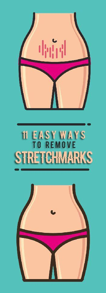 How to Remove Stretch Marks Easily.