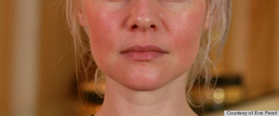 What People With Rosacea Need To Know About Concealing Redness & Treating Flare-Ups