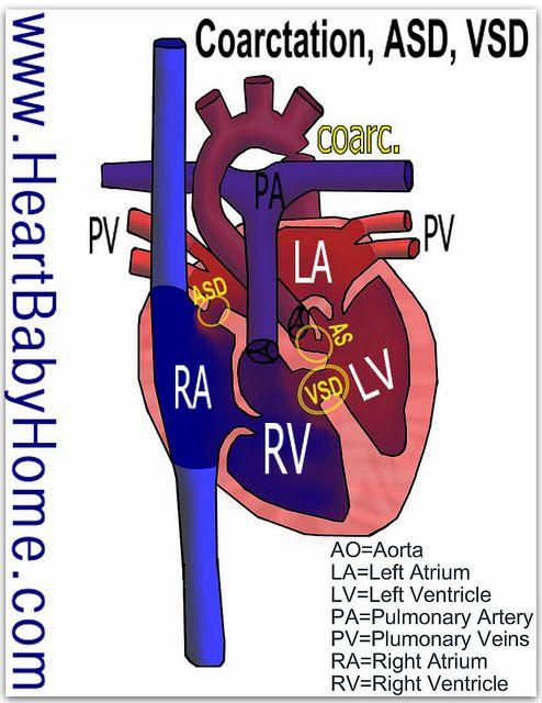 coarctation of the aorta | Coarctation of the Aorta, ASD, VSD, stenosis |