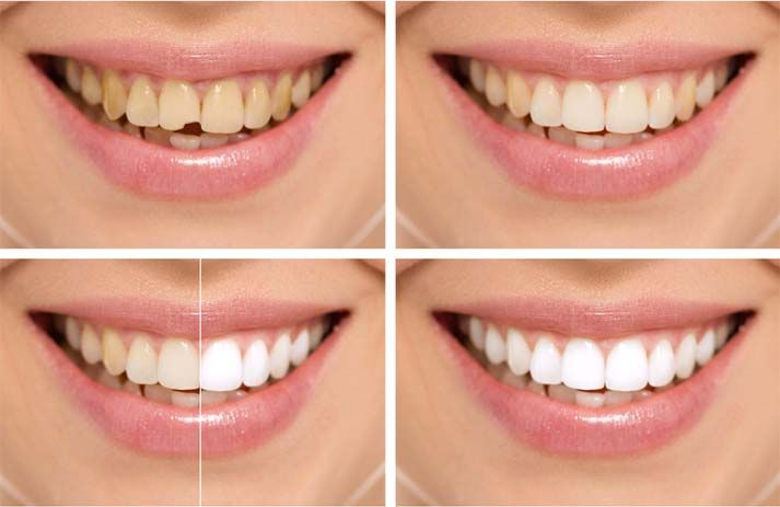 """Smile makeovers"" simply refer to cosmetic dentistry procedures which can transform your smile. One or more of the following can be adjusted as part of a smile makeover."