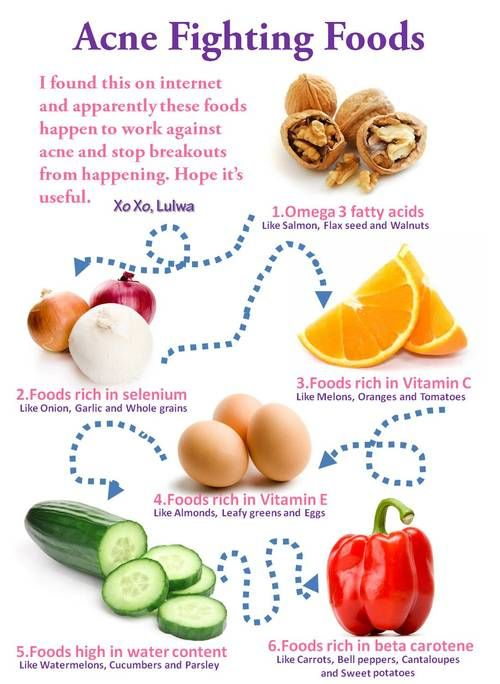 Acne-fighting foods.