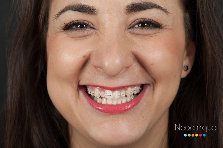 Raluca 28 ani, Aparat #Dentar #Safir