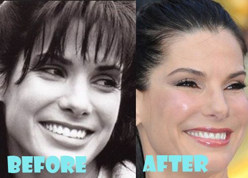 Sandra Bullock Plastic Surgery Before and After Pictures
