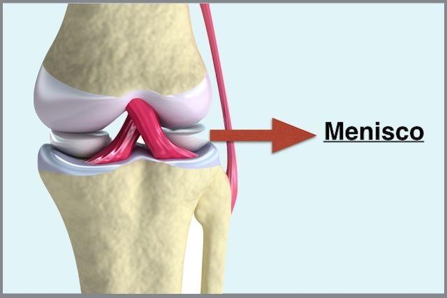 Lesão no Menisco - Sintomas e Tratamento