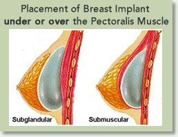 best place for breast enlargement