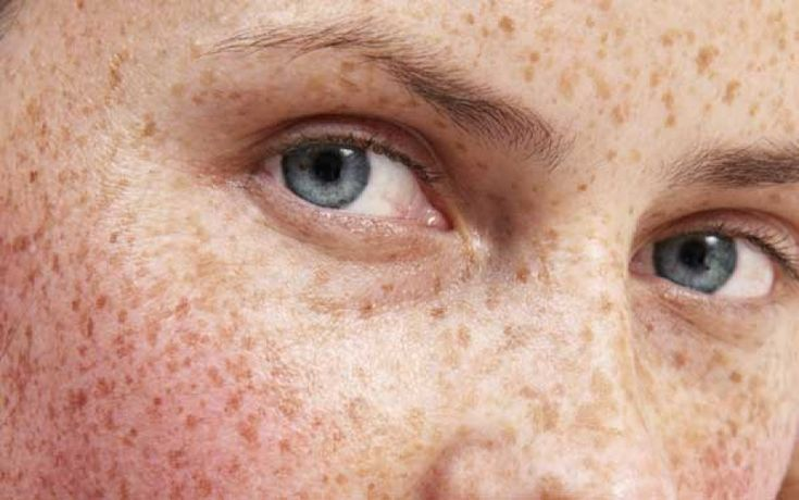 New Advances in Treating Hyperpigmentation: Treats Hyperpigmentation, Hyperpig Treatments, July 2008, Hyperpigmentation Treatments