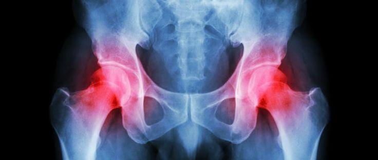 Arthrose de la hanche : les premiers symptômes