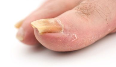 The problem is how if you are suffered from toenail right now?