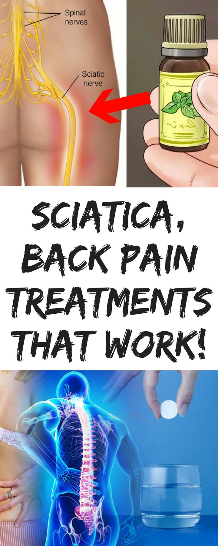 #Sciatica, Back Pain Treatments that WORK!