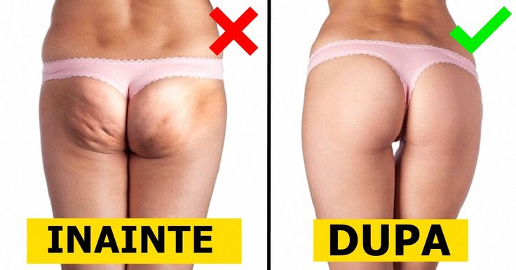 Odată cu apropierea verii, fiecare femeie își dorește să arate cât mai bine în pantaloni scurți sau în costum de baie. Zona fesierilor și picioarele sunt două regiuni ale corpului cărora trebuie să le acordăm