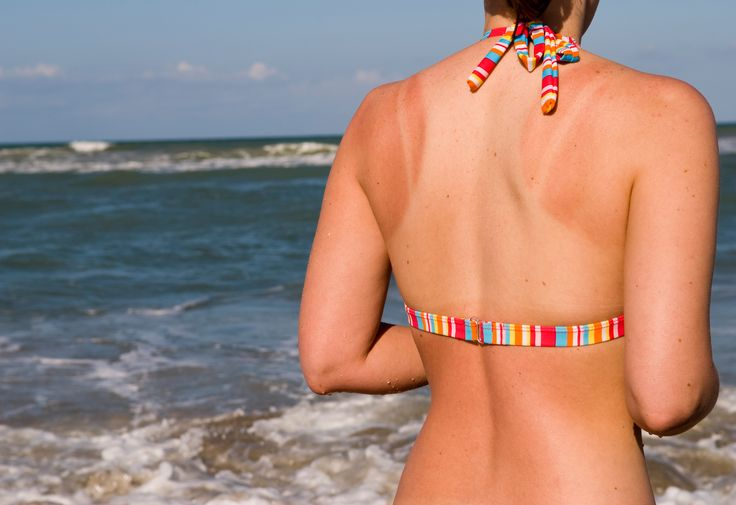 What Really Causes a Sunburn (And How to Fix it Fast!) #sunburn #summer #greatist