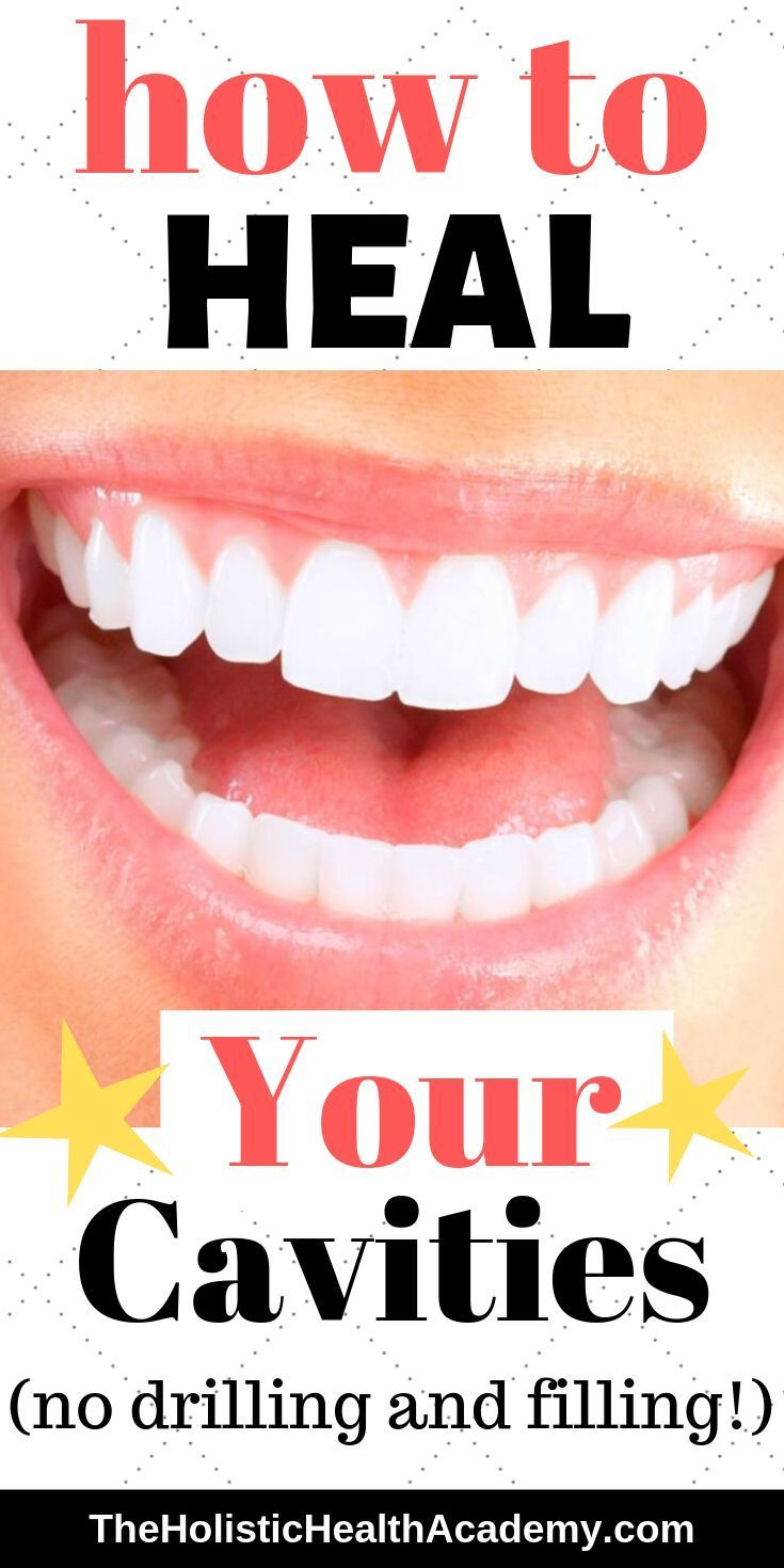 How To Heal Your Cavities And Shock Your Dentist In 2020 Holistic Dentistry Cavity Cure Cavities Heal Cavities Holistic Dentistry Teeth Health