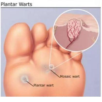 Plantar Wart Treatments Natural