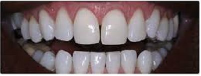 Gum Depingmentation, Root canal treatment in Delhi, Scaling and Polishing in Delhi, Celebrity dentist in Delhi, Laminates and Veneers in Gurgaon, Tooth Extraction in Gurgaon, Cosmetic Treatment Gallery in Gurgaon