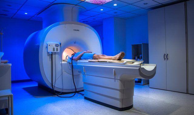 Nuevo tipo de resonancia magnética predice el riesgo de sufrir accidente cerebrovascular