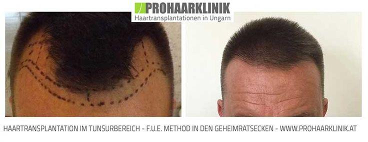 Haartransplantation, Haarimplantation, Haarverpflanzung