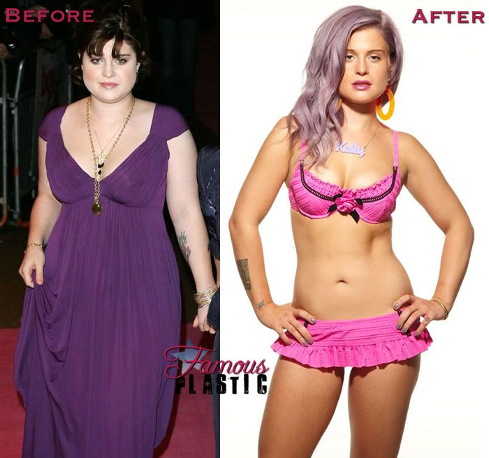 jels — Kelly Osbourne before and after losing 69lbs