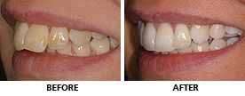An Inman Aligner was used to dramatically reduce the protrusion in only 4 months. The teeth were whitened and contoured and this lady was overjoyed with the result. http://www.praisdental.co.uk/straightening/