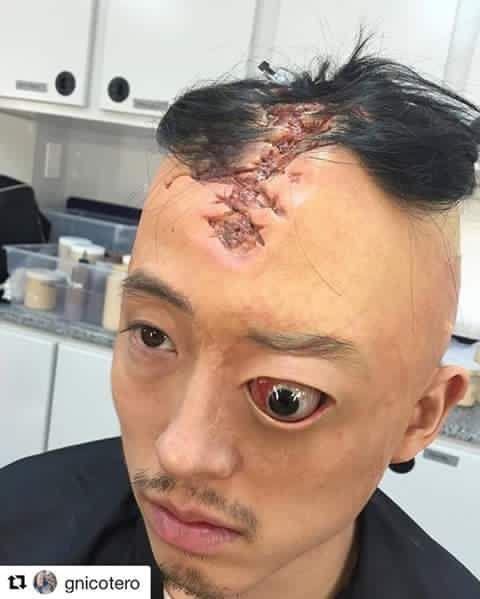 Head bashed in, eye popped out