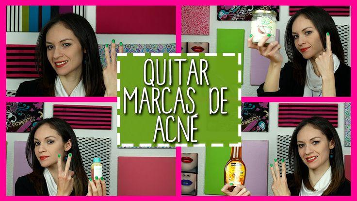 Quitar Marcas de Acne y Quitar Manchas de la Cara - 4 Remedios Caseros +...